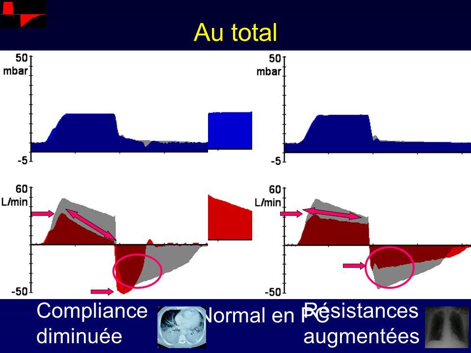 Au total Compliance diminuée Résistances augmentées Normal en PC