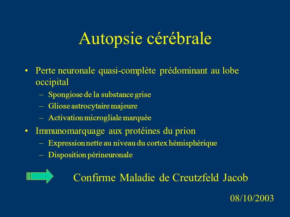 Autopsie cérébrale Confirme Maladie de Creutzfeld Jacob