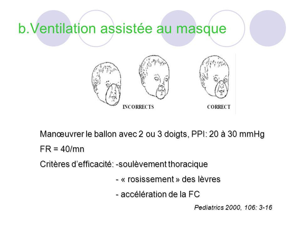 b.Ventilation assistée au masque