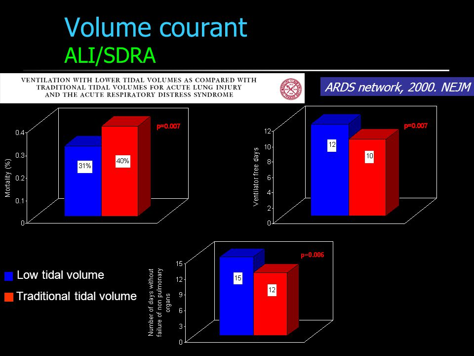Volume courant ALI/SDRA