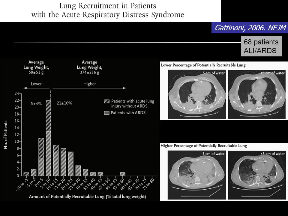 Gattinoni, 2006. NEJM 68 patients ALI/ARDS 13%du poumon est recrutable