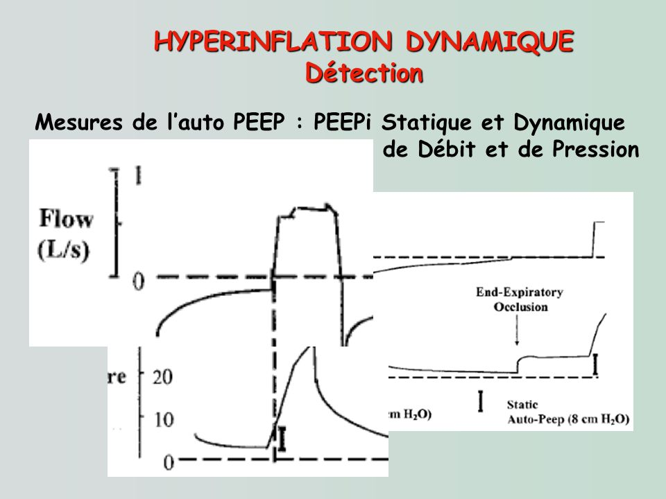 HYPERINFLATION DYNAMIQUE