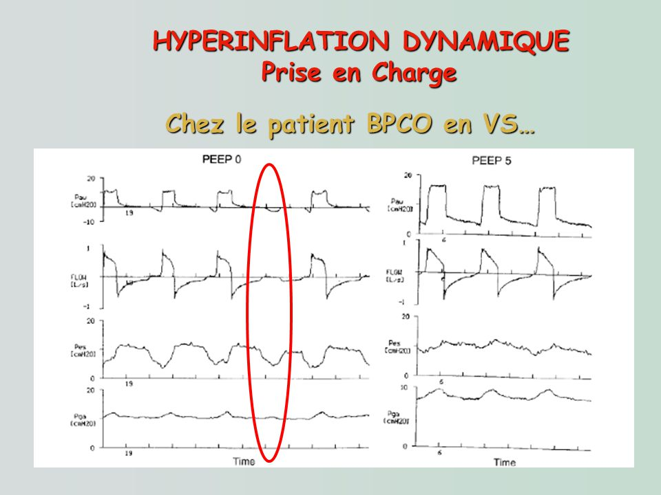 HYPERINFLATION DYNAMIQUE Chez le patient BPCO en VS…