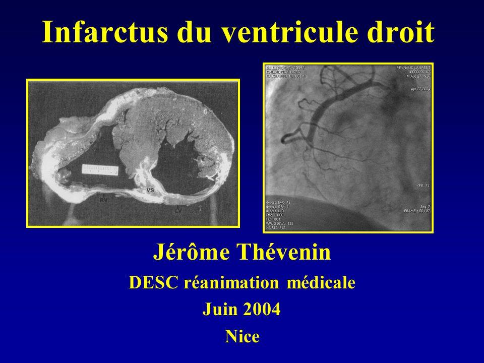 Infarctus du ventricule droit