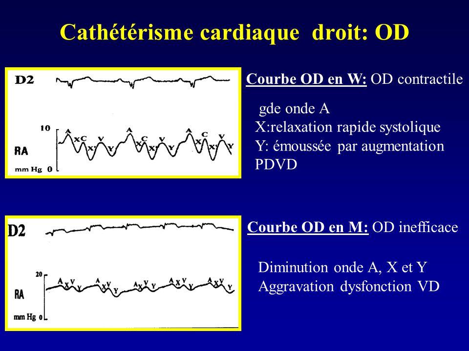Cathétérisme cardiaque droit: OD