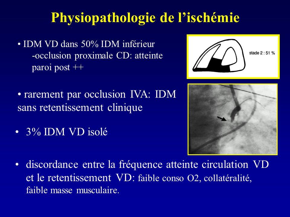Physiopathologie de l'ischémie