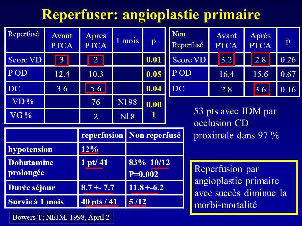 Reperfuser: angioplastie primaire