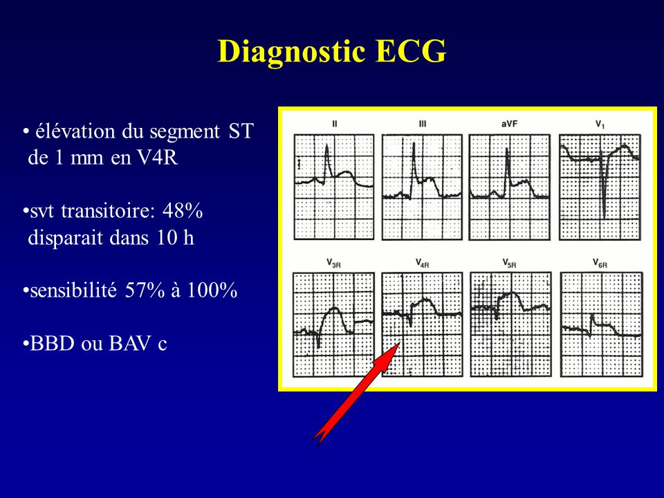 Diagnostic ECG élévation du segment ST de 1 mm en V4R