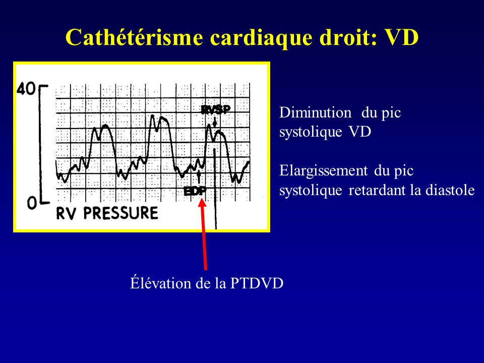 Cathétérisme cardiaque droit: VD
