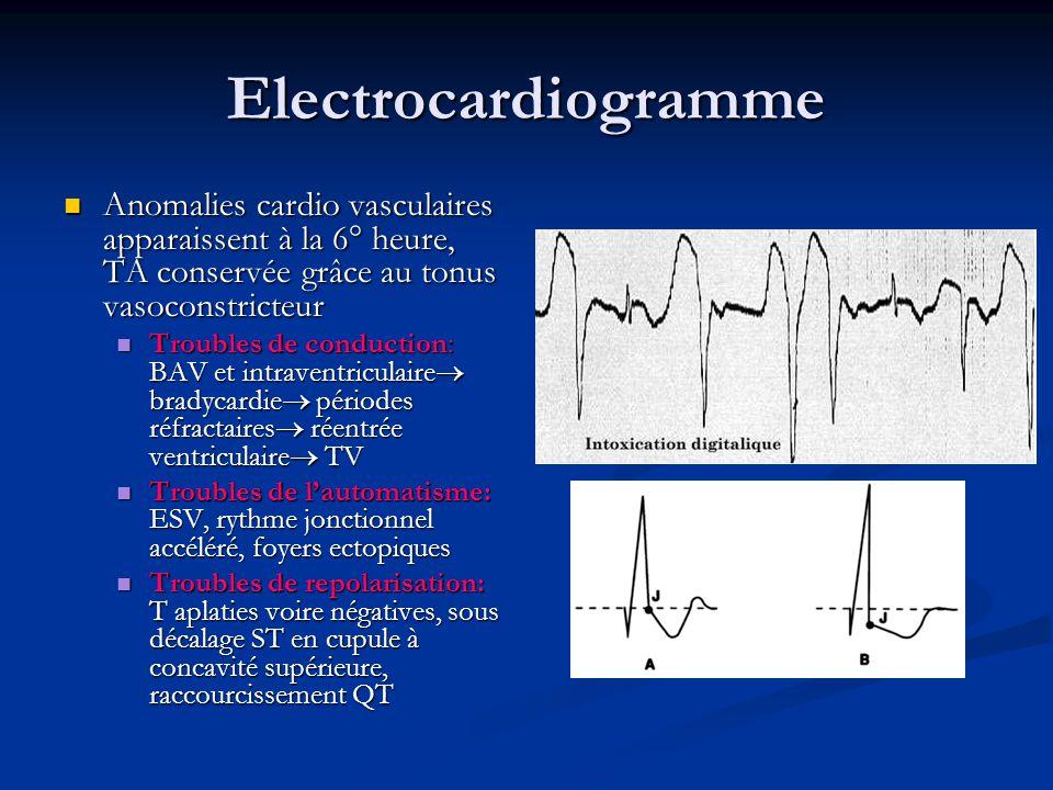 Electrocardiogramme Anomalies cardio vasculaires apparaissent à la 6° heure, TA conservée grâce au tonus vasoconstricteur.