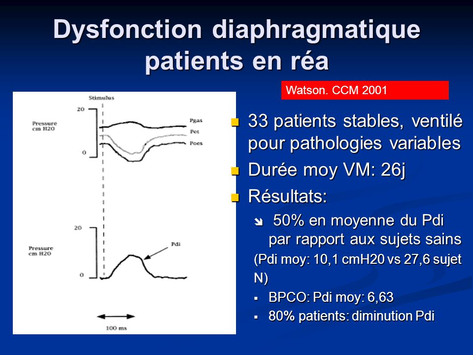 Dysfonction diaphragmatique patients en réa