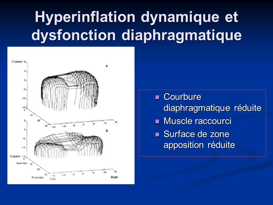 Hyperinflation dynamique et dysfonction diaphragmatique