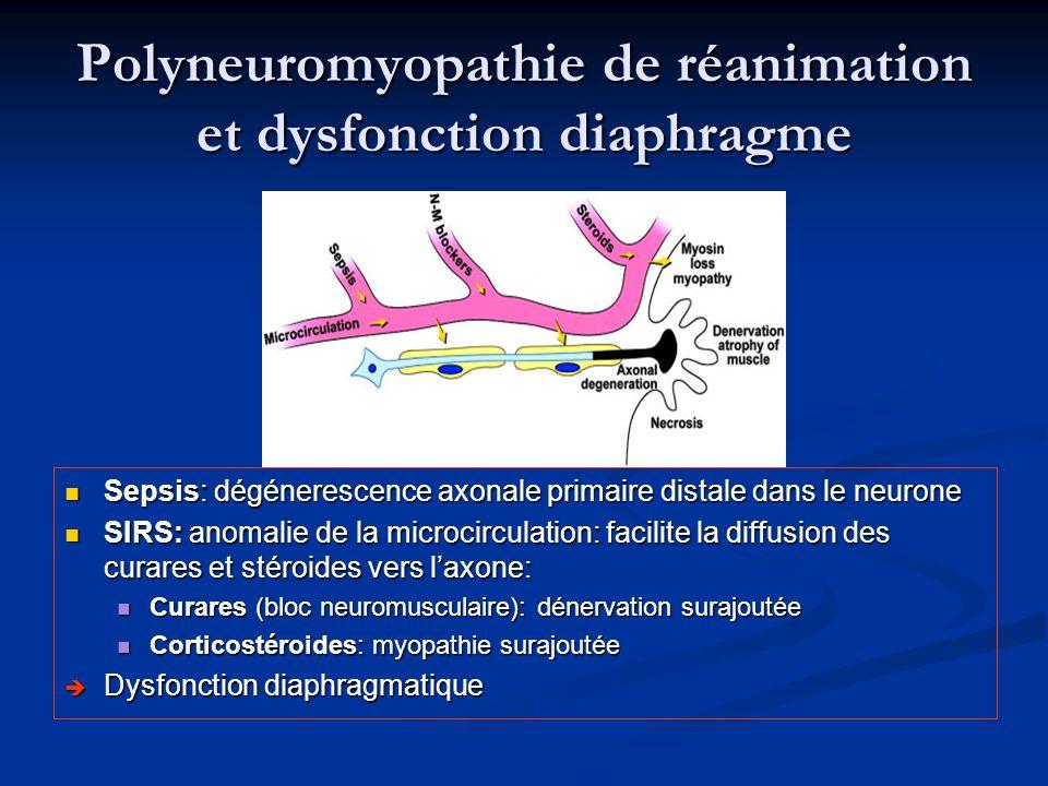 Polyneuromyopathie de réanimation et dysfonction diaphragme