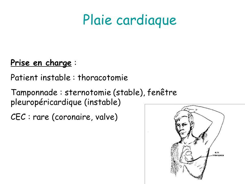 Plaie cardiaque Prise en charge : Patient instable : thoracotomie