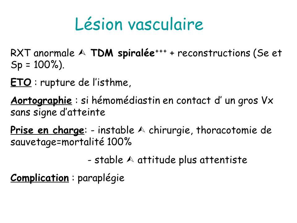 Lésion vasculaire RXT anormale  TDM spiralée+++ + reconstructions (Se et Sp = 100%). ETO : rupture de l'isthme,