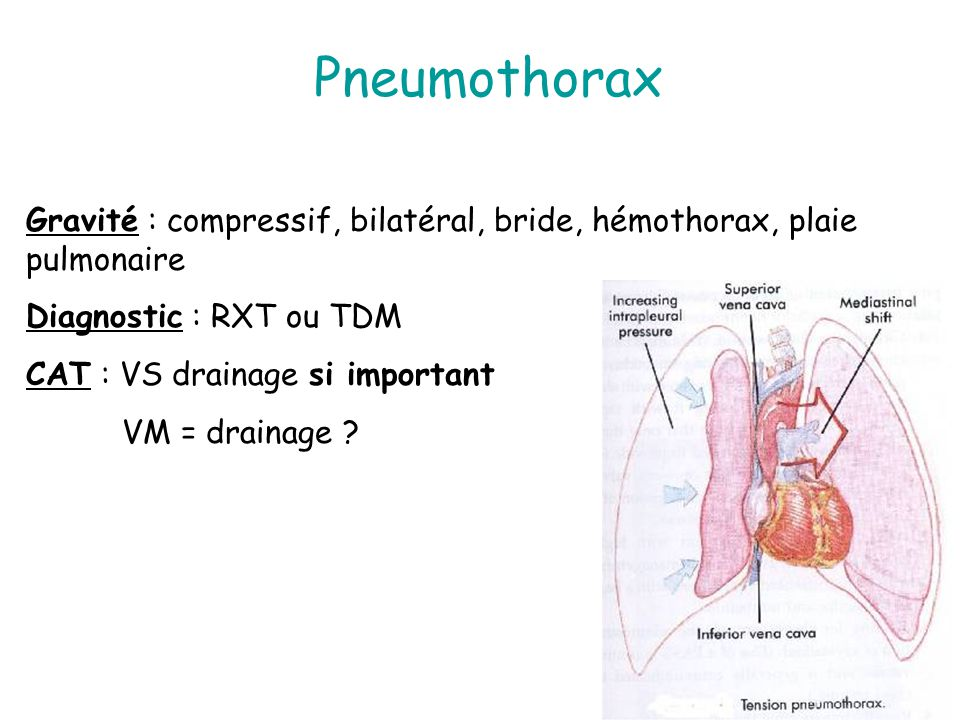 Pneumothorax Gravité : compressif, bilatéral, bride, hémothorax, plaie pulmonaire. Diagnostic : RXT ou TDM.