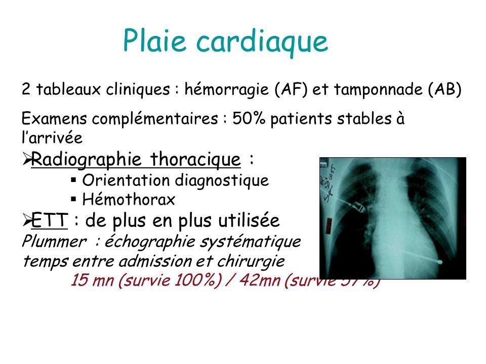 Plaie cardiaque Radiographie thoracique :