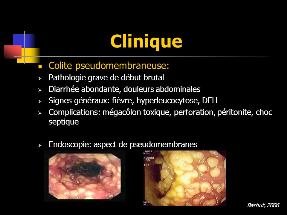 Clinique Colite pseudomembraneuse: Pathologie grave de début brutal