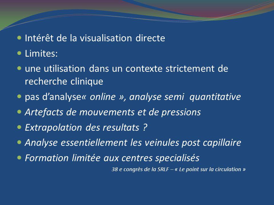 Intérêt de la visualisation directe Limites: