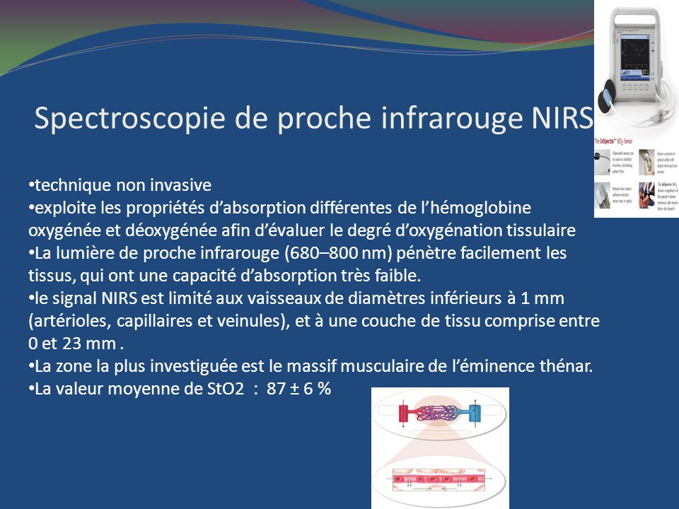 Spectroscopie de proche infrarouge NIRS