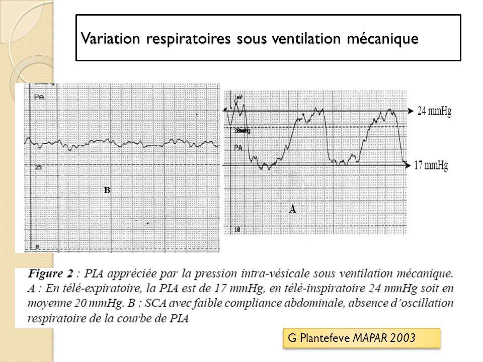 Variation respiratoires sous ventilation mécanique