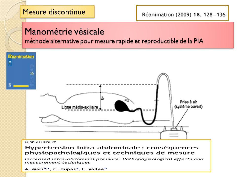 Mesure discontinue Manométrie vésicale méthode alternative pour mesure rapide et reproductible de la PIA.