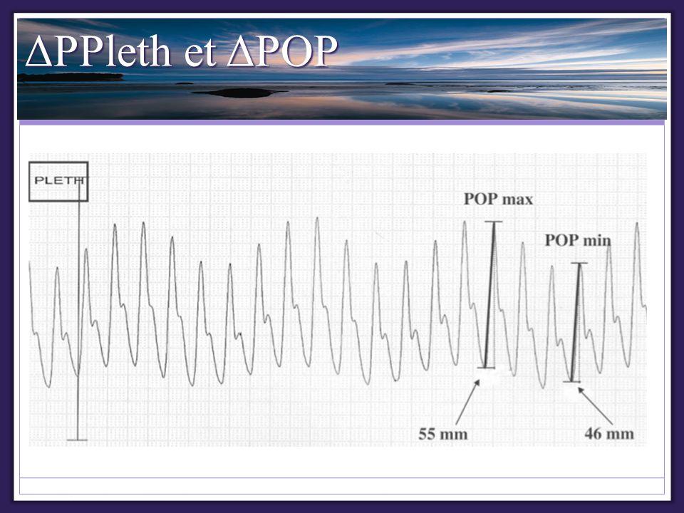 ΔPPleth et ΔPOP