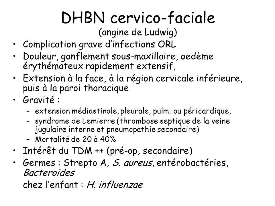 DHBN cervico-faciale (angine de Ludwig)