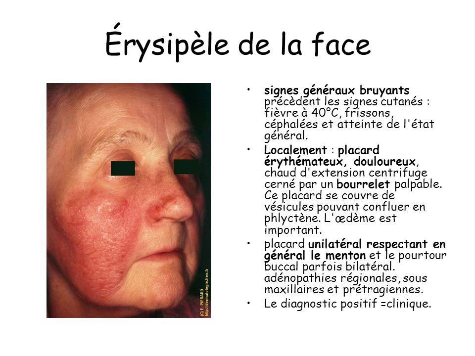 Érysipèle de la face signes généraux bruyants précèdent les signes cutanés : fièvre à 40°C, frissons, céphalées et atteinte de l état général.