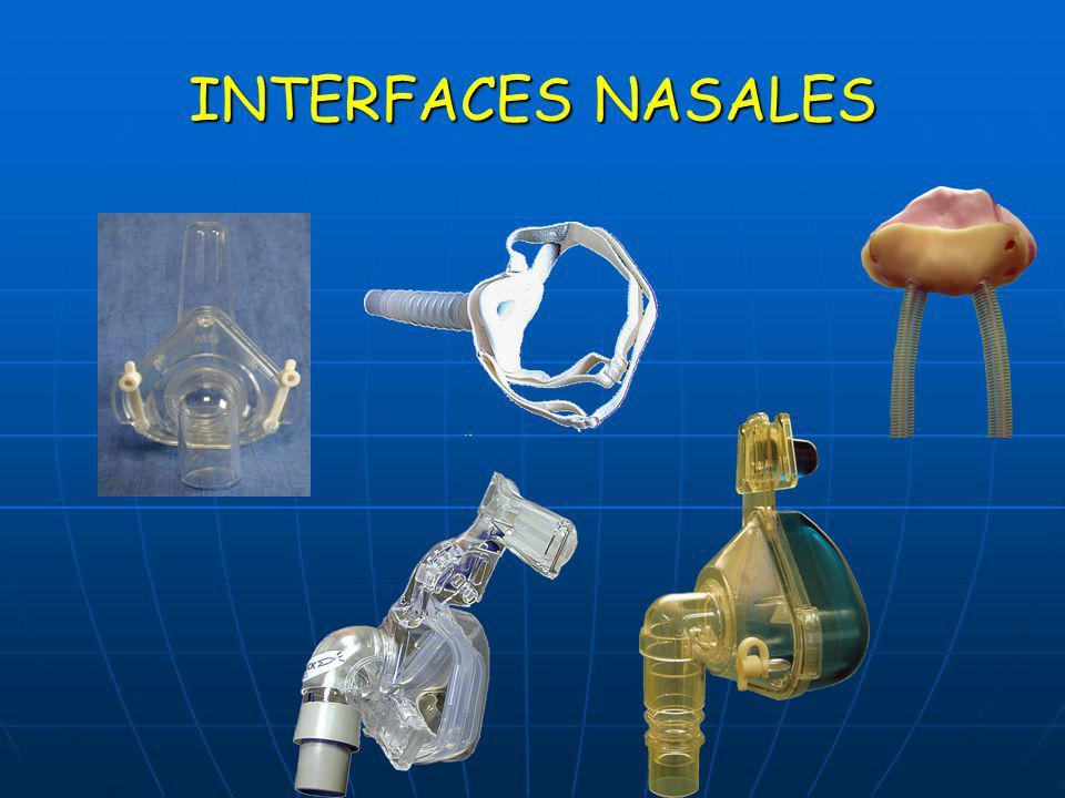 INTERFACES NASALES
