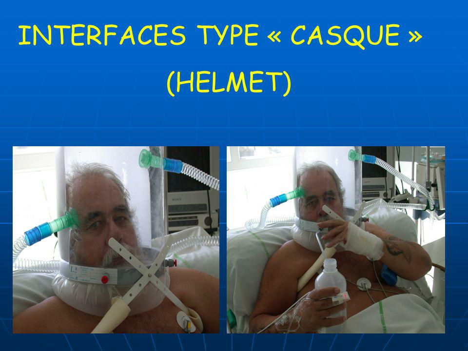 INTERFACES TYPE « CASQUE »