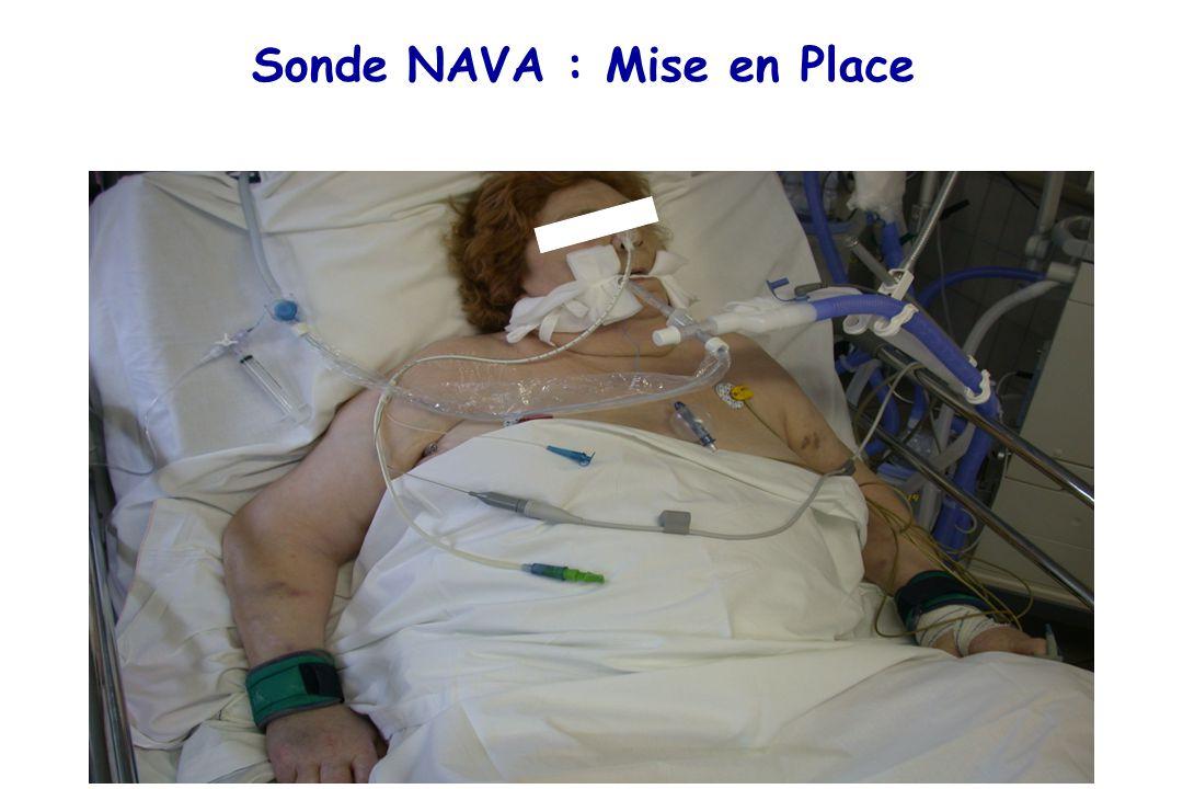 Sonde NAVA : Mise en Place
