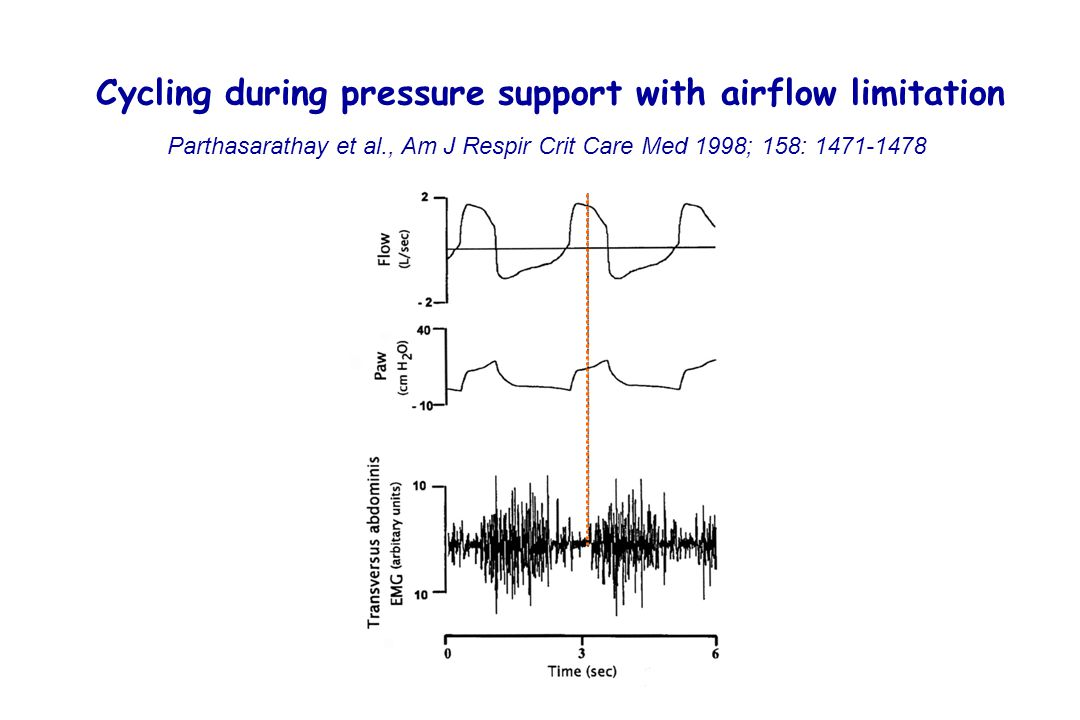 Cycling during pressure support with airflow limitation