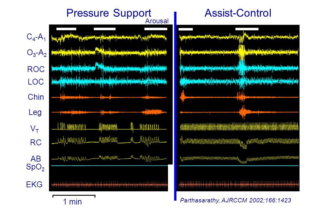 Pressure Support Assist-Control C4-A1 O3-A2 ROC LOC Chin Leg VT RC AB