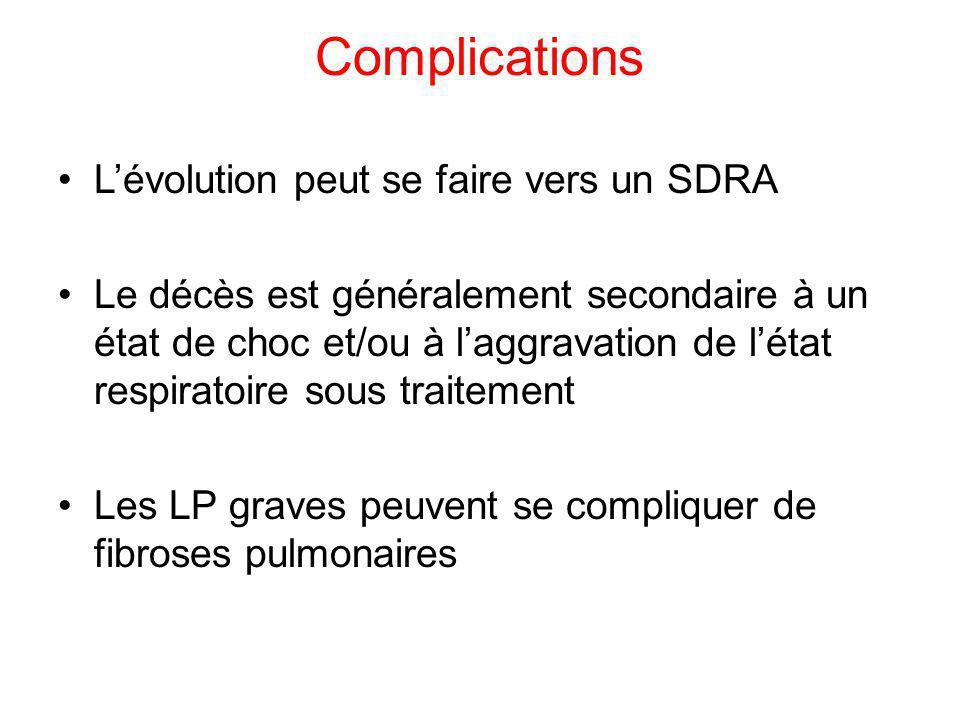 Complications L'évolution peut se faire vers un SDRA