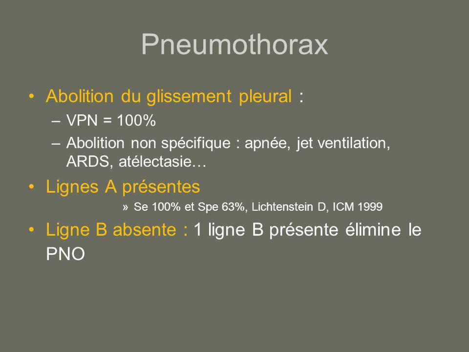 Pneumothorax Abolition du glissement pleural : Lignes A présentes