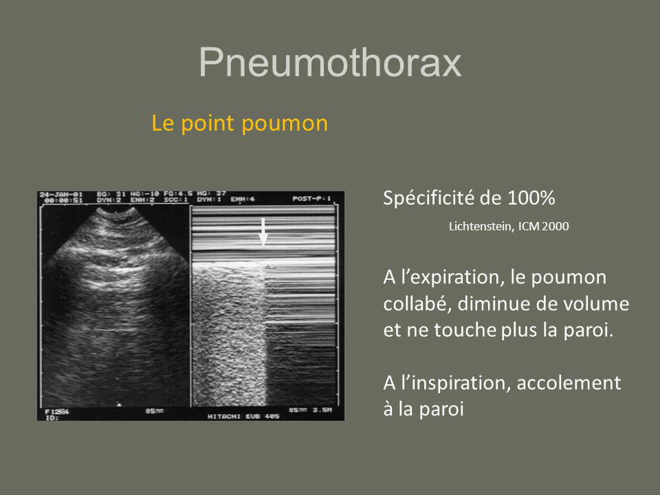 Pneumothorax Le point poumon Spécificité de 100%