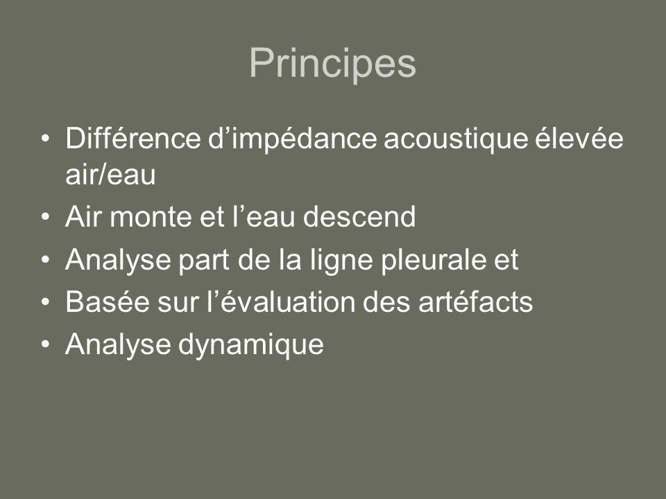 Principes Différence d'impédance acoustique élevée air/eau