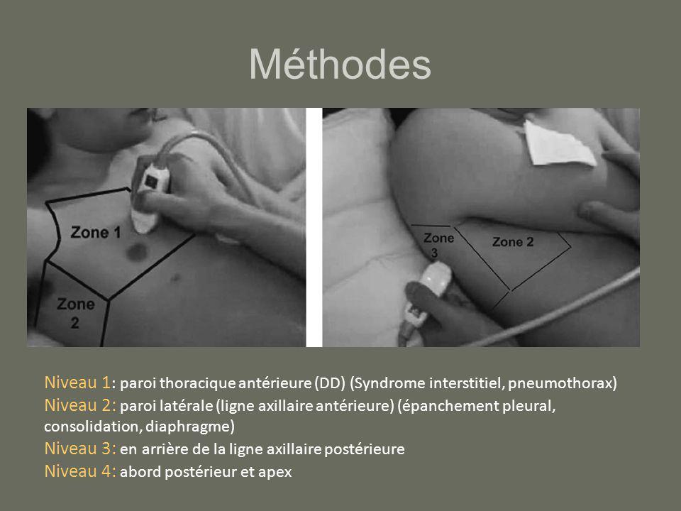 Méthodes Niveau 1: paroi thoracique antérieure (DD) (Syndrome interstitiel, pneumothorax)