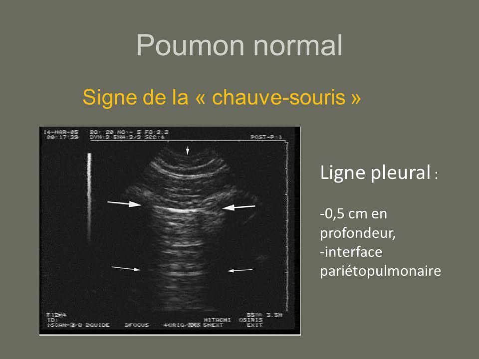 Poumon normal Signe de la « chauve-souris » Ligne pleural :