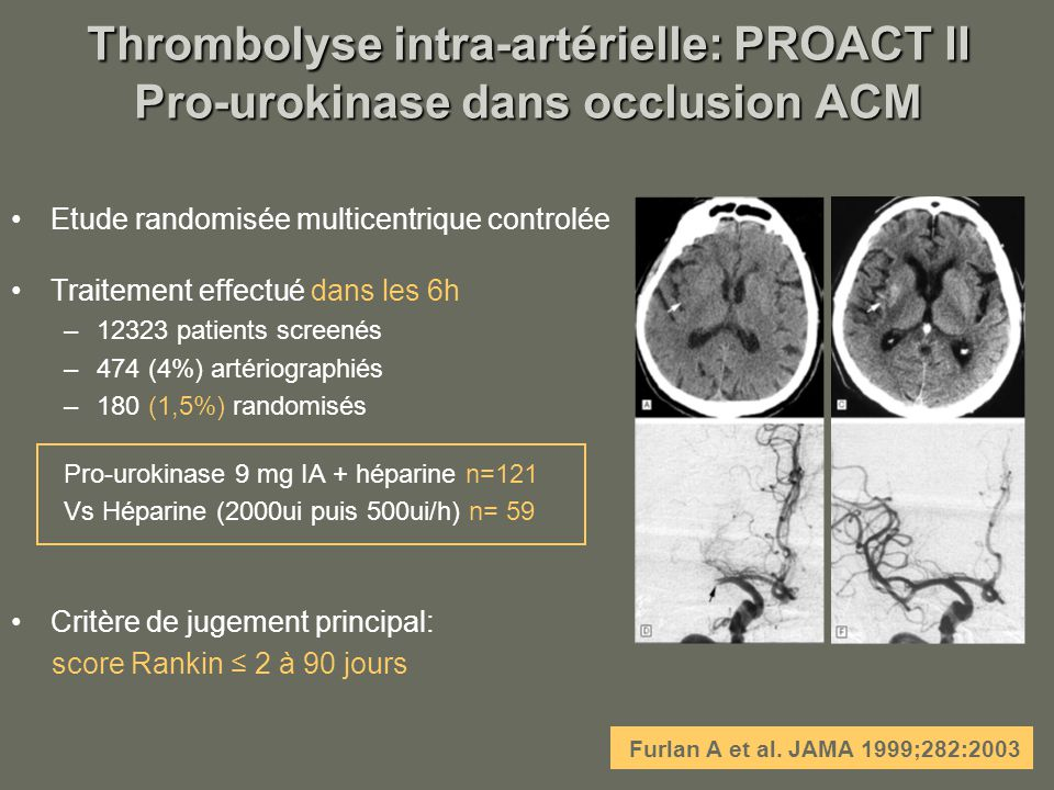 Thrombolyse intra-artérielle: PROACT II Pro-urokinase dans occlusion ACM