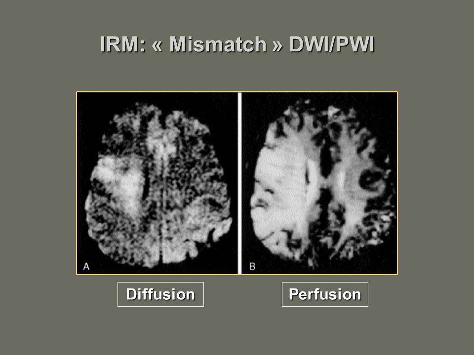 IRM: « Mismatch » DWI/PWI