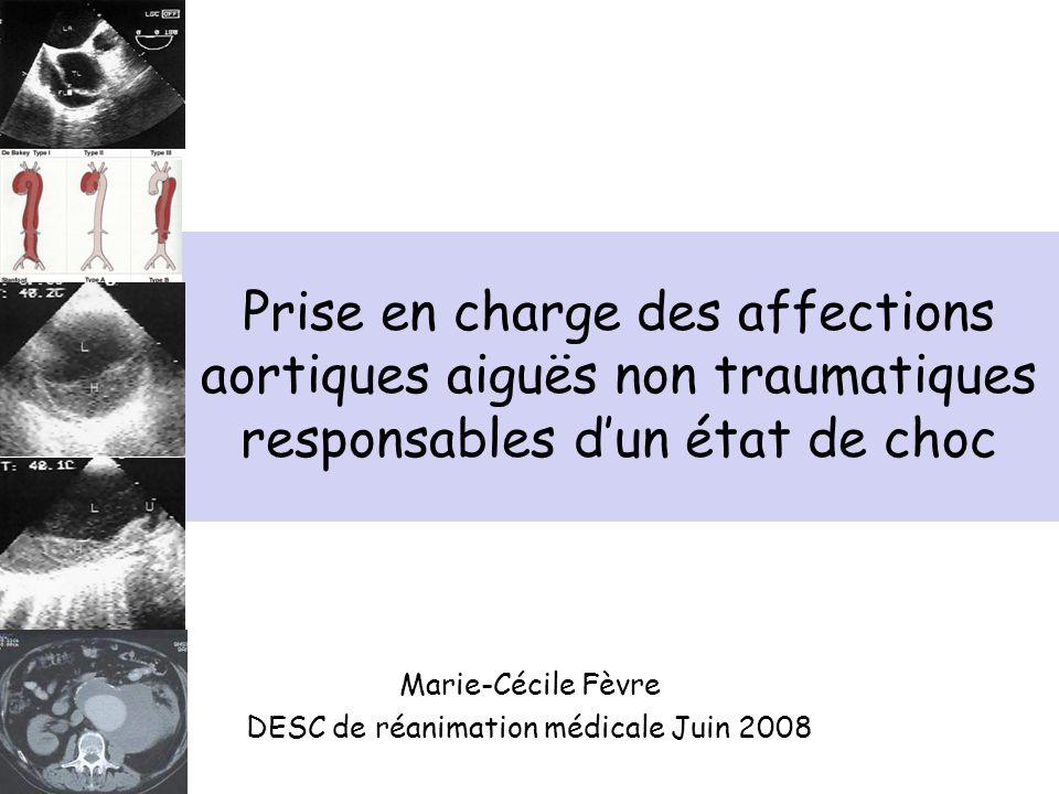Marie-Cécile Fèvre DESC de réanimation médicale Juin 2008