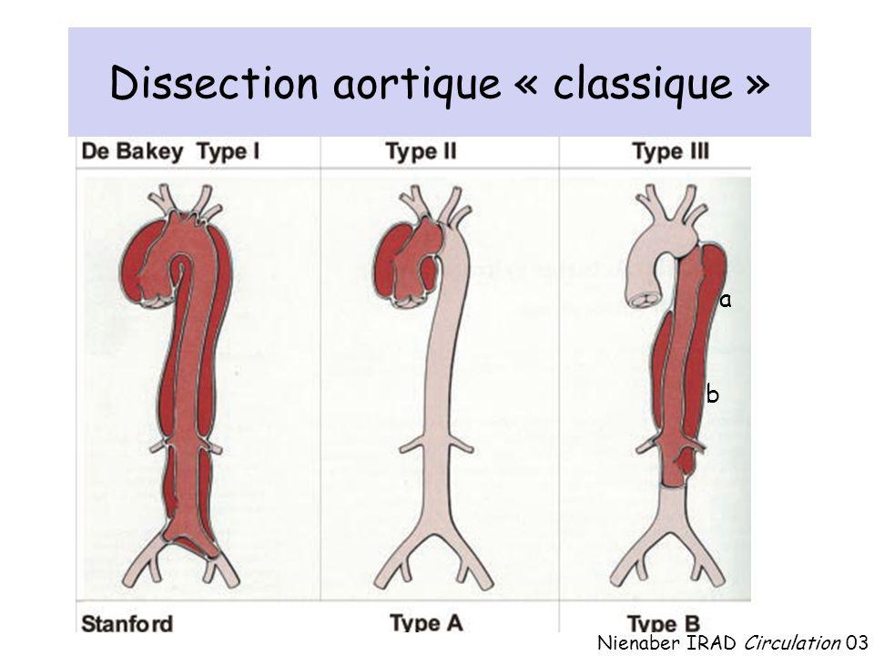 Dissection aortique « classique »