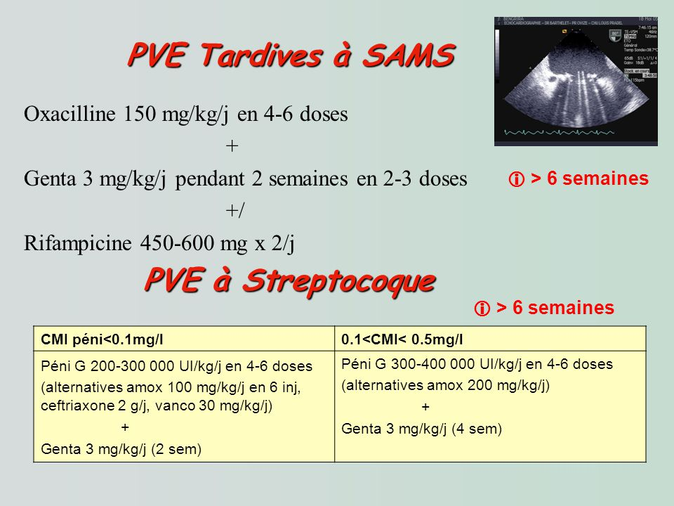 PVE Tardives à SAMS PVE à Streptocoque