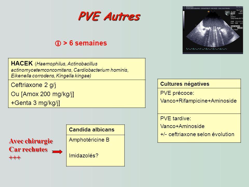 PVE Autres  > 6 semaines Avec chirurgie Car rechutes +++