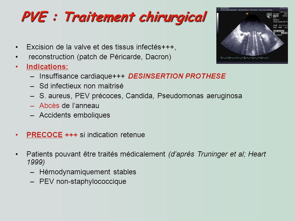 PVE : Traitement chirurgical