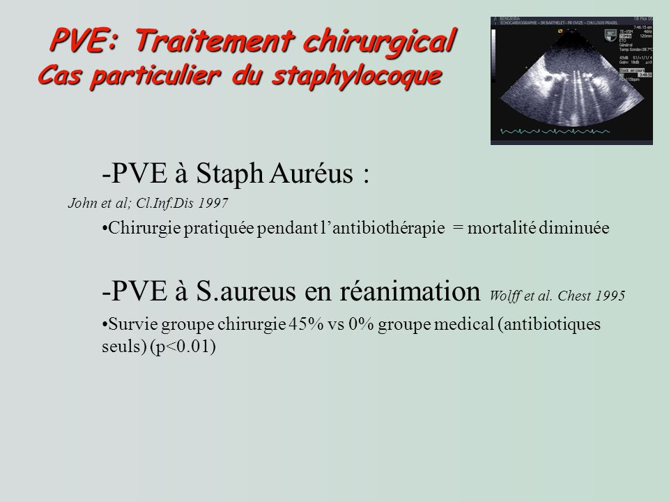 PVE: Traitement chirurgical