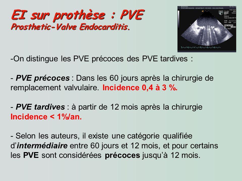 EI sur prothèse : PVE Prosthetic-Valve Endocarditis.