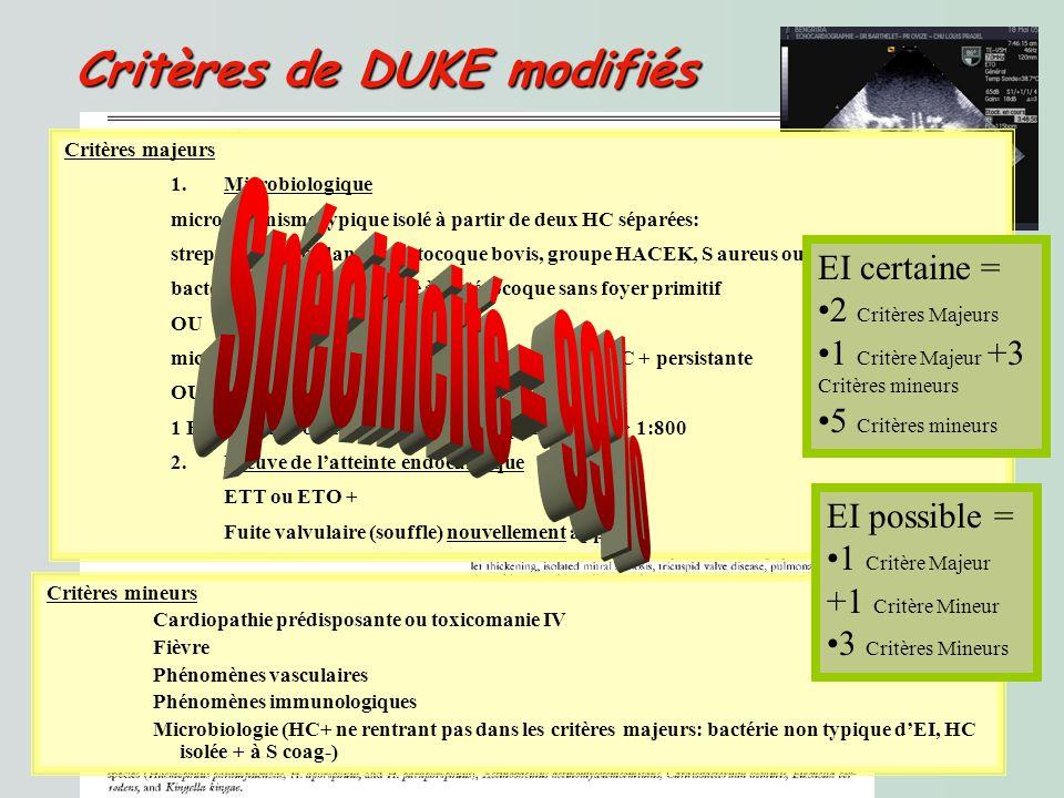 Spécificité = 99% Critères de DUKE modifiés EI certaine =